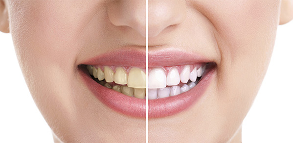 Protect Your Teeth From Stains